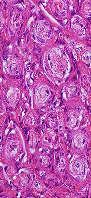 pn tumors