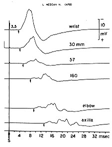 Conduction block. Amount of block increases with more proximal stimulation.