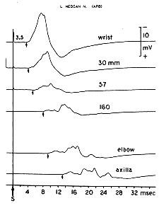 Diagnosis Treatment Of Motor Neuropathies