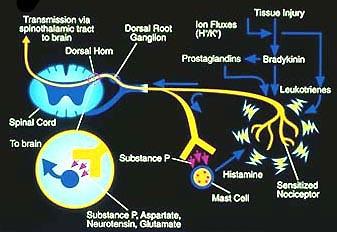 neuropathic pain in legs