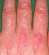 V Sign Dermatomyositis Inflammatory Myopathy
