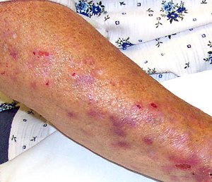 List of cutaneous conditions  Wikipedia