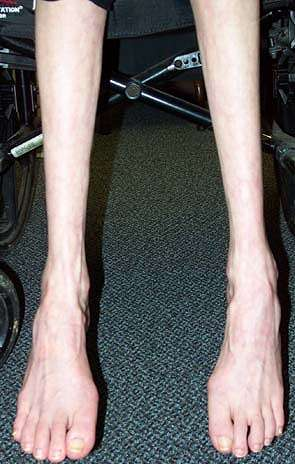 Image Gallery leg muscle atrophy