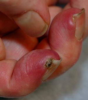 Image result for amyopathic dermatomyositis mda5
