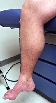 Neuromuscular large small sensory for Hereditary motor sensory neuropathy treatment