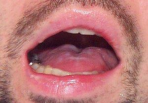 Migraine medication melts tongue