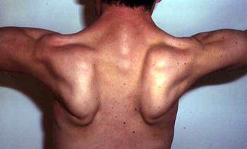 Limb-Girdle Muscular Dystrophies