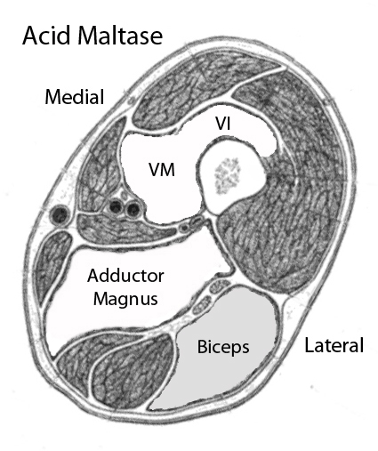 adult acid maltase