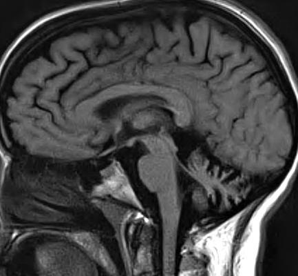 multipla skleroza terapija kortikosteroidima